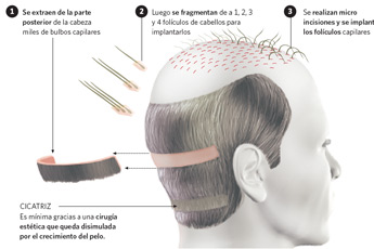 Implante de cabello - my plastic surgeon in mexico