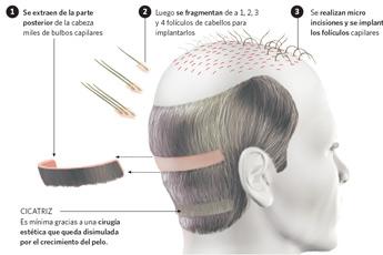 Implante de cabello - my plastic surgeon in mexico
