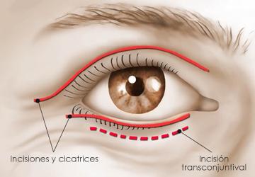 cirugia parpados - my plastic surgeon in mexico