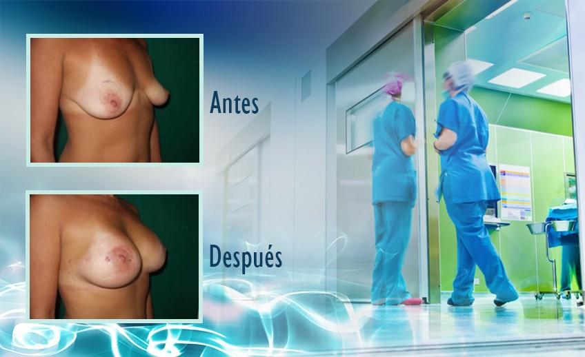 my plastic surgeon in mexico - testimonios 10