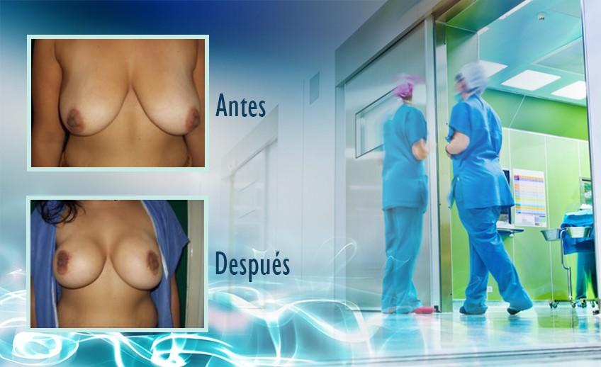 my plastic surgeon in mexico - testimonios 11