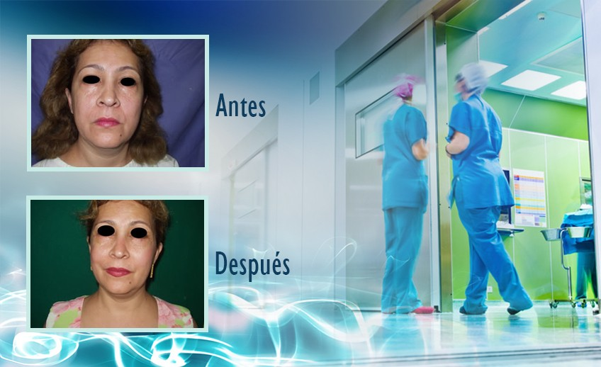 my plastic surgeon in mexico - testimonios 12