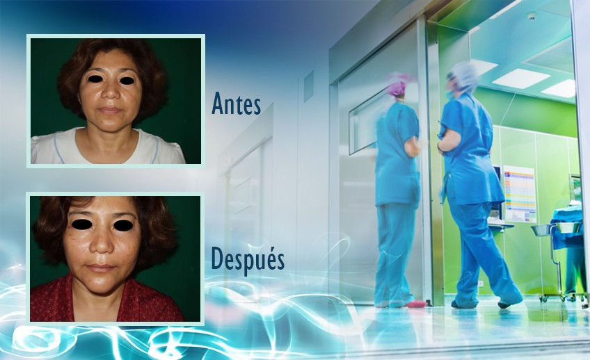 my plastic surgeon in mexico - testimonios 13