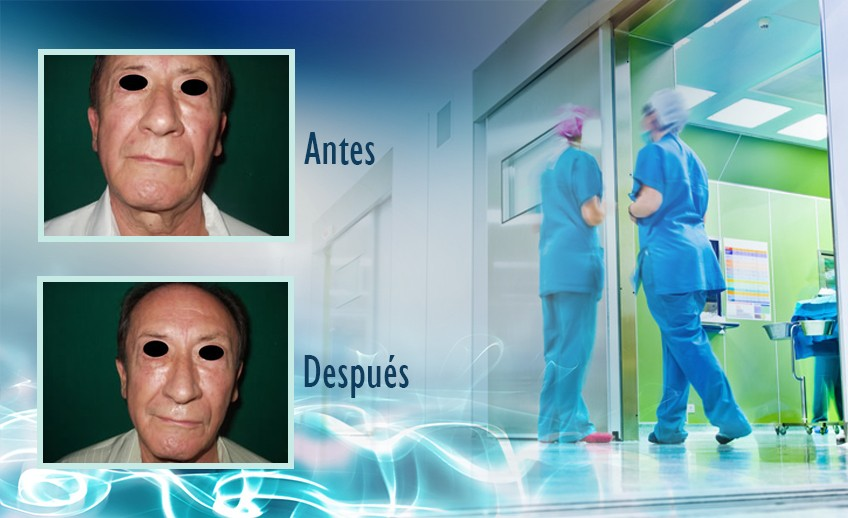 my plastic surgeon in mexico - testimonios 14