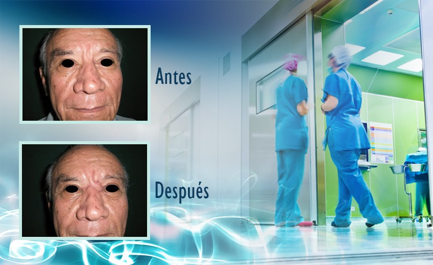 my plastic surgeon in mexico - testimonios 19