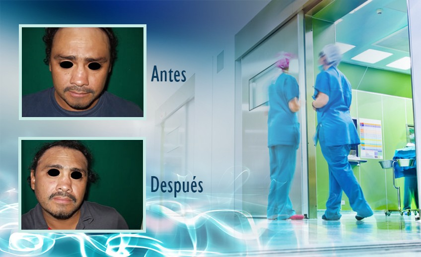 my plastic surgeon in mexico - testimonios 22
