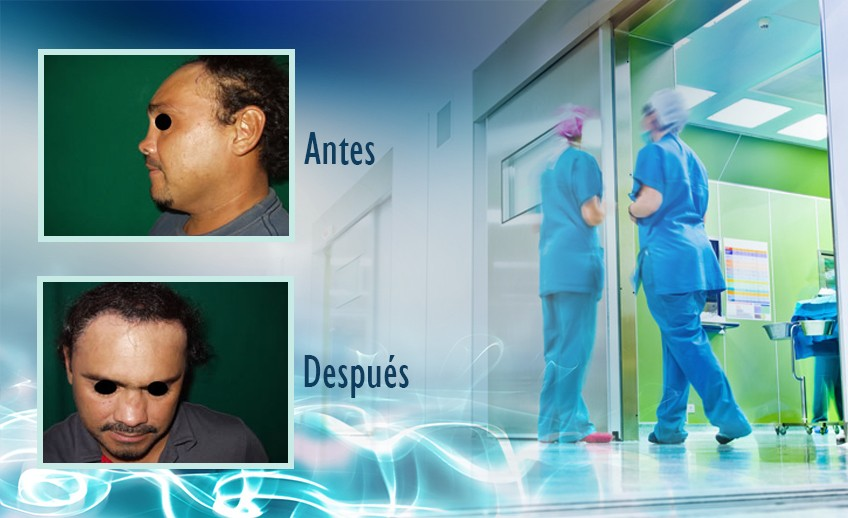 my plastic surgeon in mexico - testimonios 23