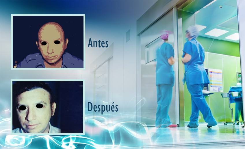 my plastic surgeon in mexico - testimonios 24