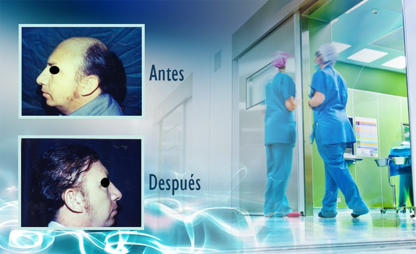 my plastic surgeon in mexico - testimonios 25