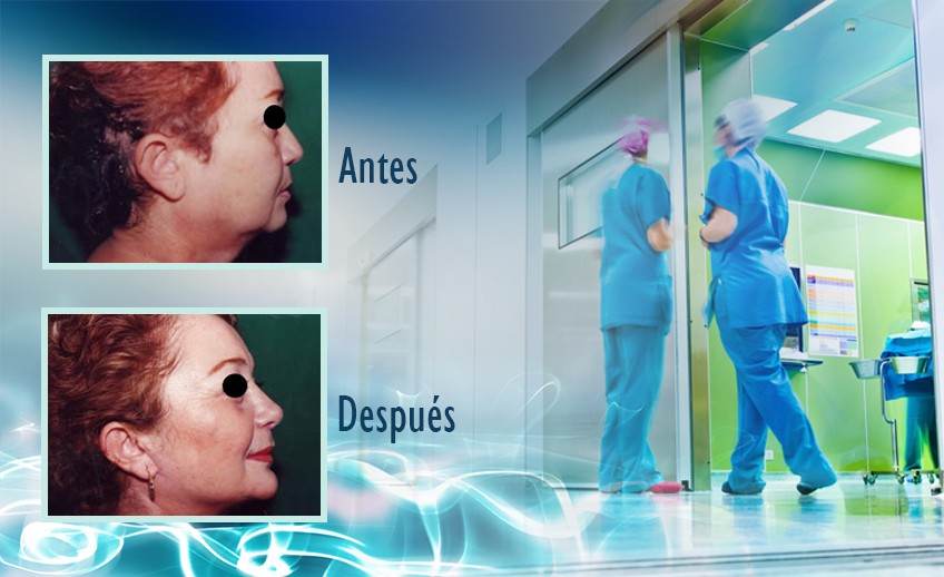 my plastic surgeon in mexico - testimonios 26