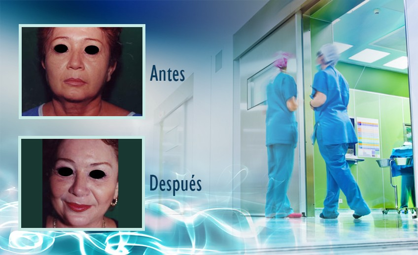 my plastic surgeon in mexico - testimonios 27