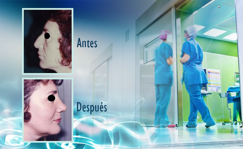 my plastic surgeon in mexico - testimonios 31