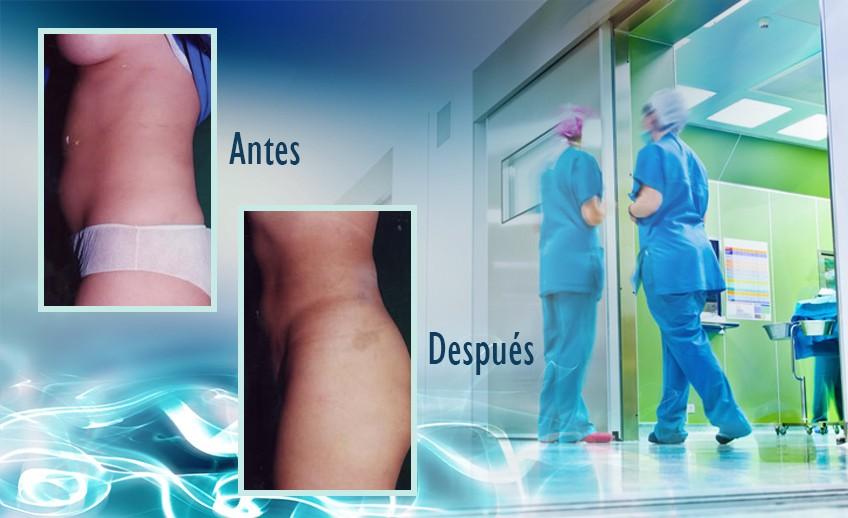 my plastic surgeon in mexico - testimonios 34