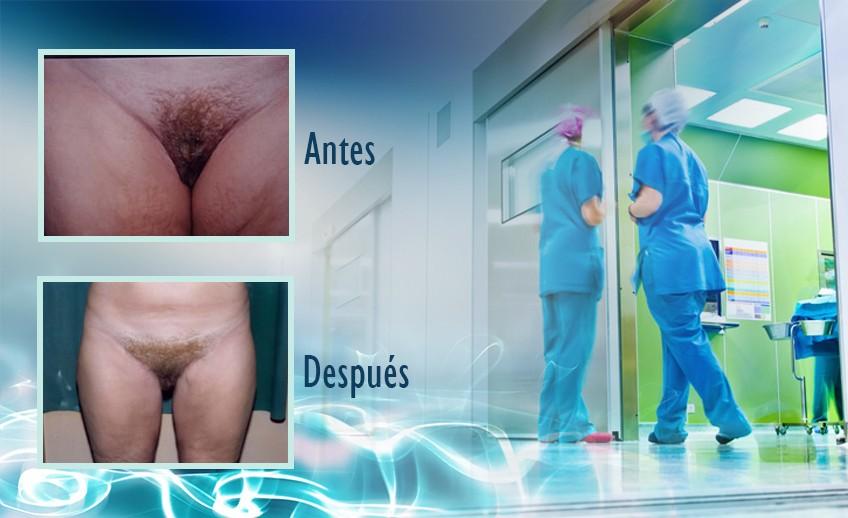 my plastic surgeon in mexico - testimonios 35