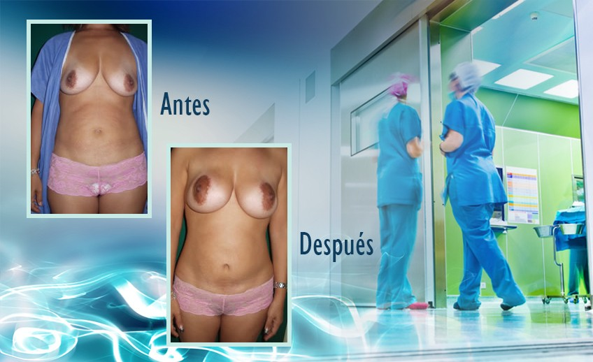 my plastic surgeon in mexico - testimonios 36