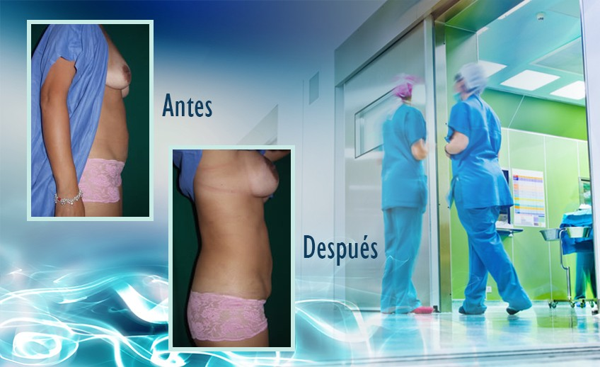 my plastic surgeon in mexico - testimonios 37