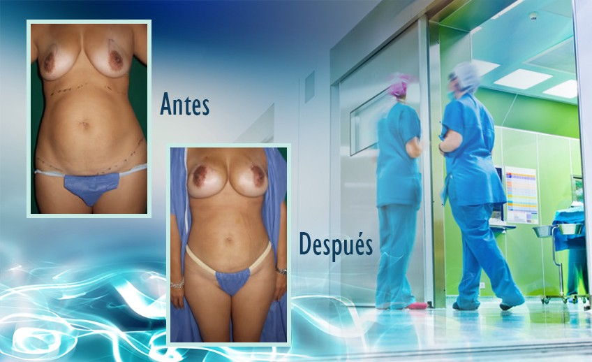my plastic surgeon in mexico - testimonios 38