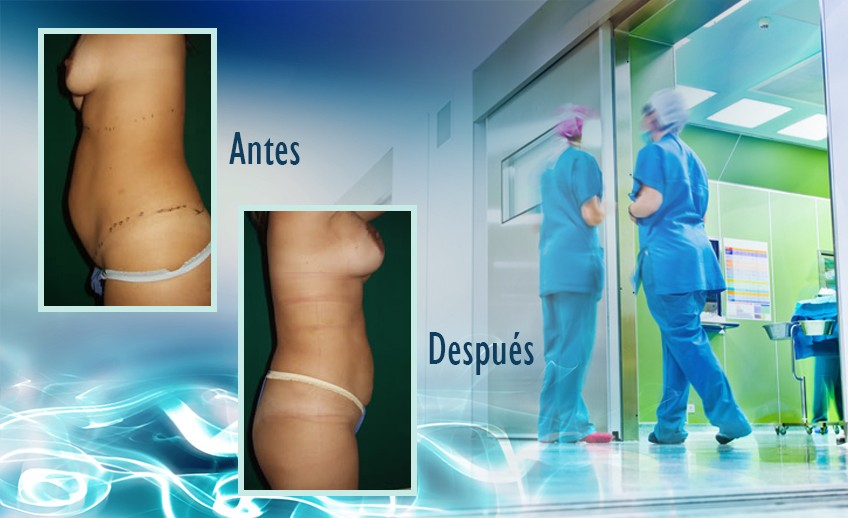 my plastic surgeon in mexico - testimonios 39
