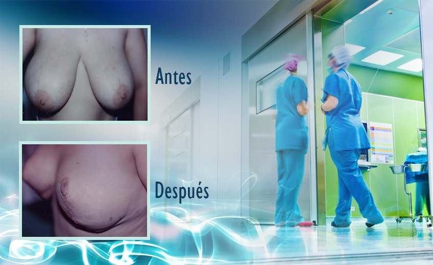 my plastic surgeon in mexico - testimonios 4