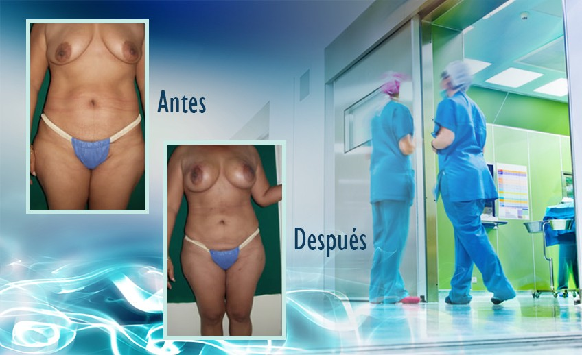 my plastic surgeon in mexico - testimonios 40