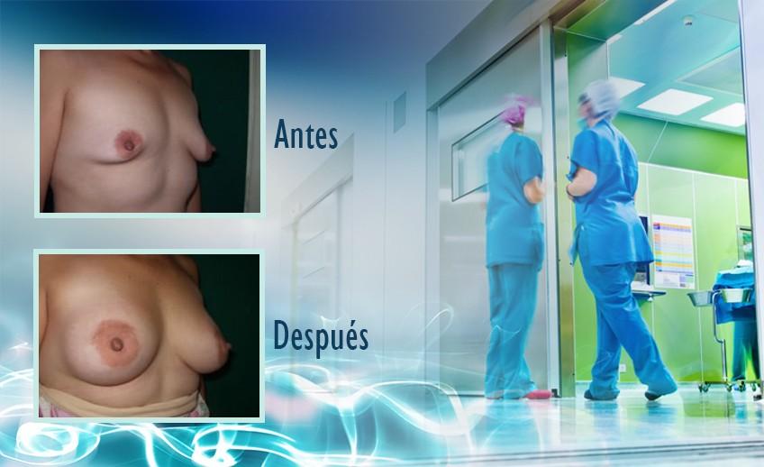 my plastic surgeon in mexico - testimonios 8